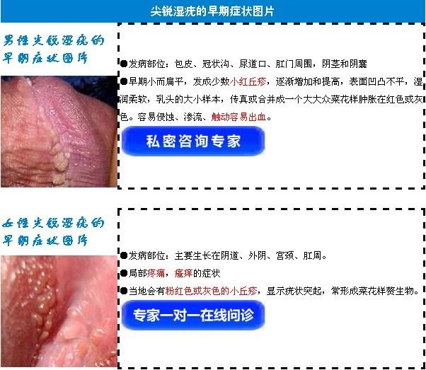 郑州尖锐湿疣药物能治疗吗_临汾新闻网