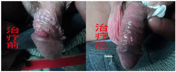 郑州尖锐湿疣的医院_临汾新闻网